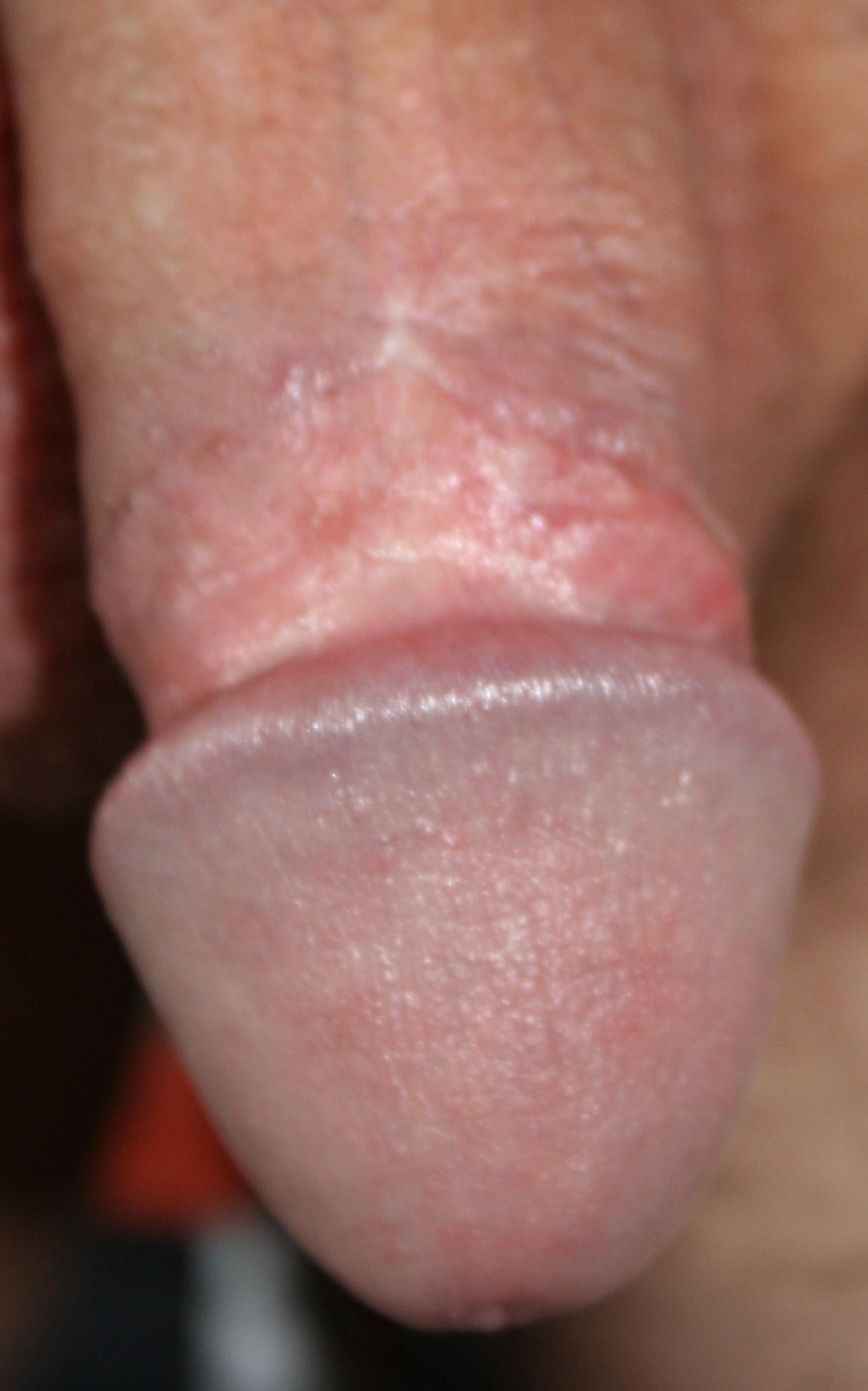 saunaclub dorsten heilungsdauer beschneidung